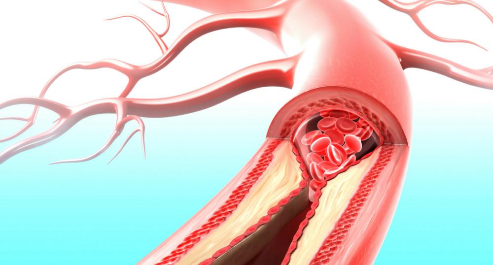 curatarea vaselor de sange