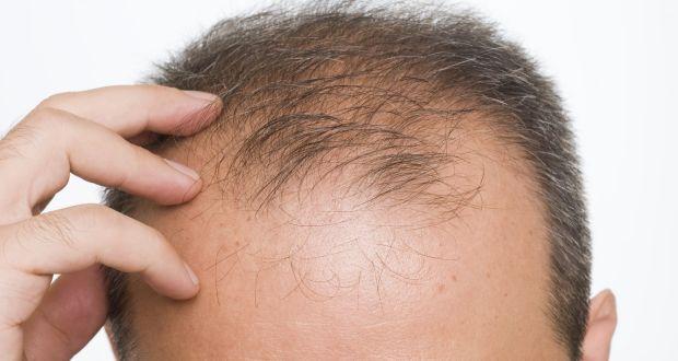 Cum afectează testosteronul chelie de model masculin - Vitamine