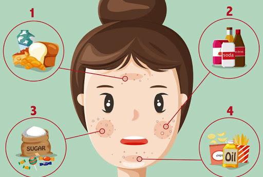 Cele 7 alimente care cauzeaza acnee si ce sa mananci in loc