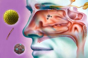 infecție sinusală remedii naturiste